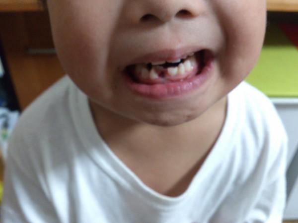 乳歯 抜歯